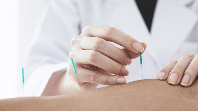 Acupuncture:  What it can treat.